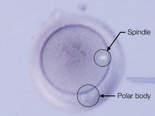 Image of polar body and spindle