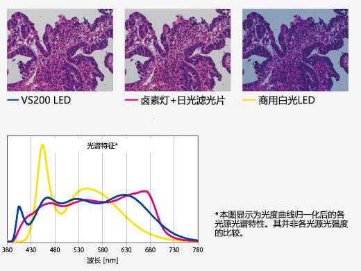 Bright LED Lighting Optimized for Pathology and Cytology